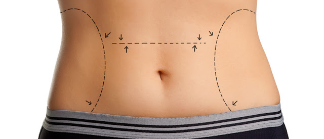 Cosmetic Surgery and Weight Loss
