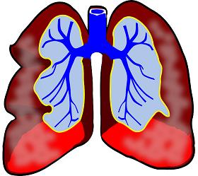 اليانسون النجمي للجهاز التنفسي