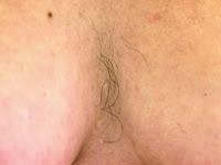cause dei peli sul seno