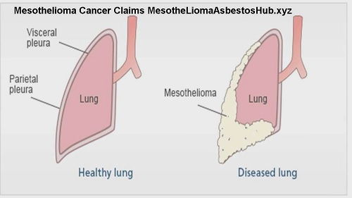 Mesothelioma Commercial Annoying