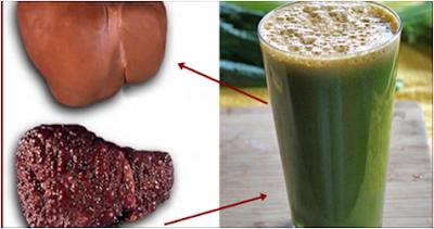 أقوى مشروب لـ تنظيف وتقوية الكبد ووقايته من الأمراض الشائعة