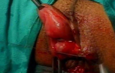 Mengobati wasir tanpa operasi