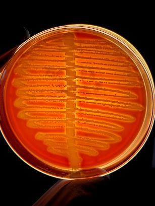 Ágar Sangue com Alfa-hemólise