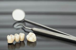 رؤية تساقط الأسنان في المنام للعزباء