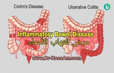 مرض التهاب الأمعاء Inflammatory Bowel Disease