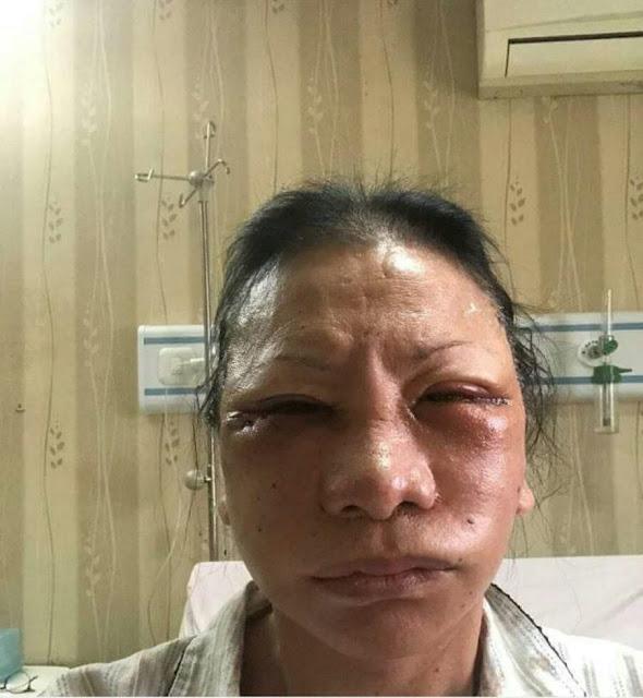 Ratna Sarumpaet Diserang, Komisi III DPR: Negara Gagal Lindungi Warga