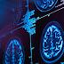 Стресовите ситуации радикално променят мозъка