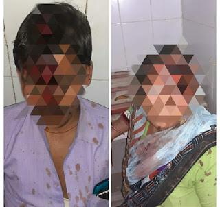 सीतापुर : पुलिस की लापरवाही के चलते बहिया बहरामपुर गांव में जमीनी विवाद को लेकर हुई मारपीट