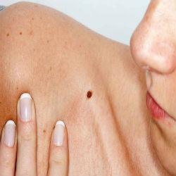 Recomendações para pacientes com câncer de pele