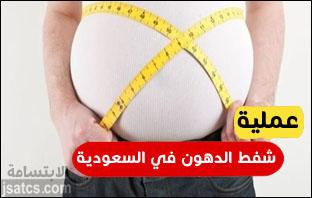 تكلفة عملية شفط دهون البطن في السعودية