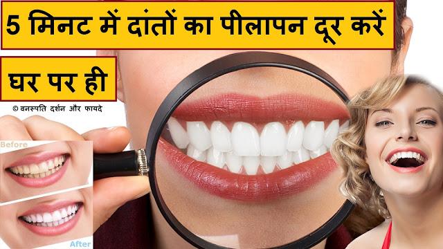 5 मिनट में दांतों का पीलापन दूर करें घर पर ही