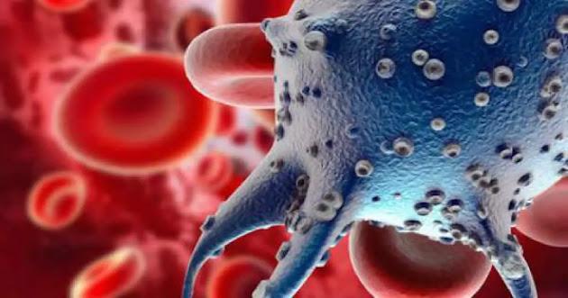 التهابات المهبل - الأسباب والأعراض والعلاج بالتفصيل