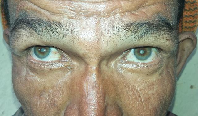 cataract in Nepal