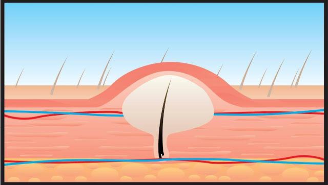 علاج واضرار نمو الشعر تحت الجلد
