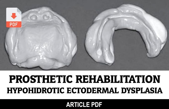 PDF: Prosthetic rehabilitation for a patient with hypohidrotic ectodermal dysplasia: a clinical case