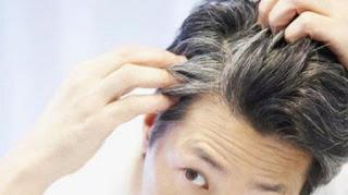 uban rambut, menghitamkan uban rambut