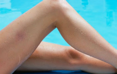 how to get rid of spider veins in legs naturally