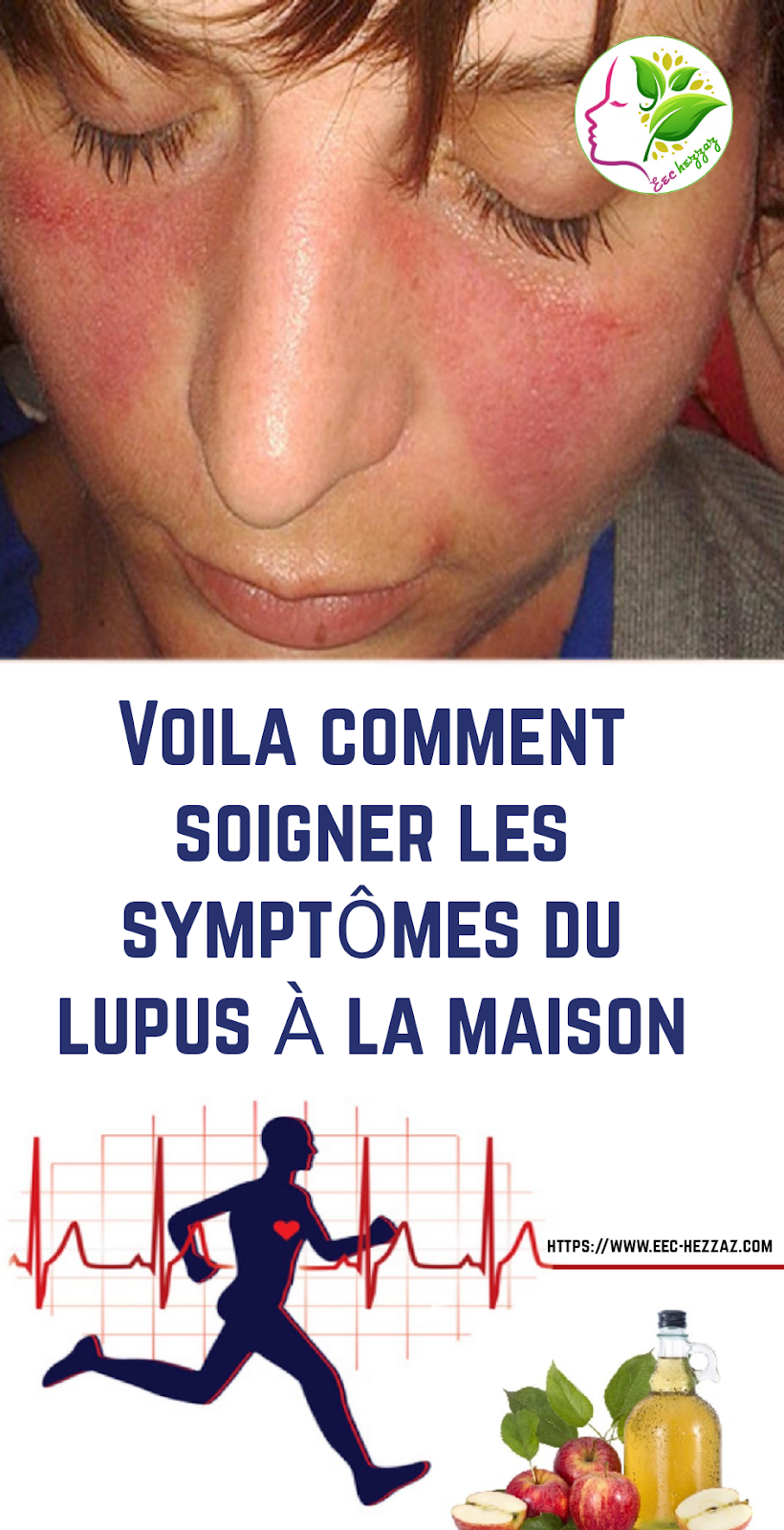 Voila comment soigner les symptômes du lupus à la maison