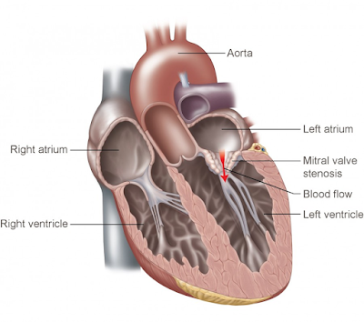 mitral valve stenosis cause