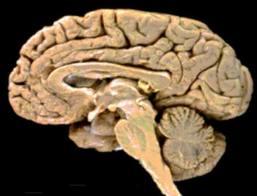 El cerebro. Partes. Funciones del cerebro.|Bueno Saber