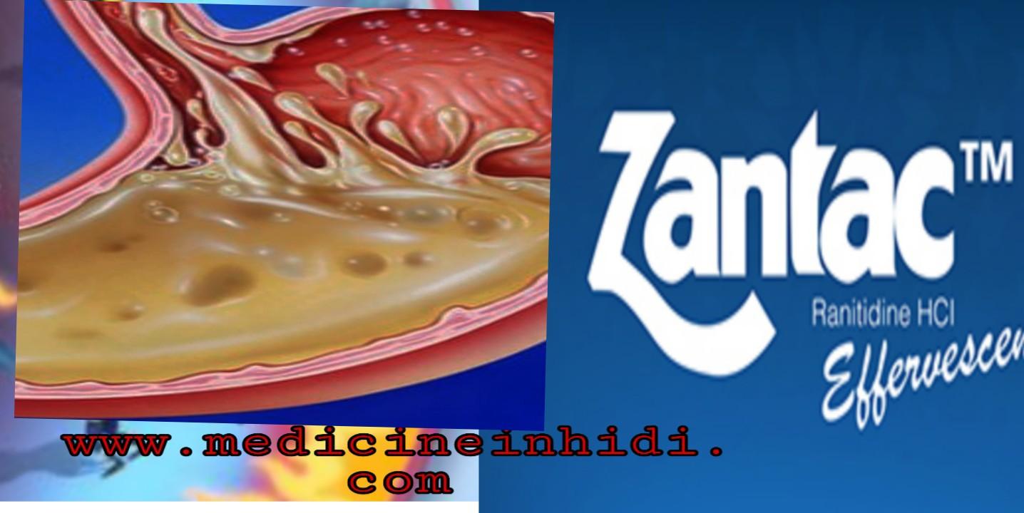 Ranitidine in hindi  | ranitidine teblet Use,Dose & Sideeffect in hindi |