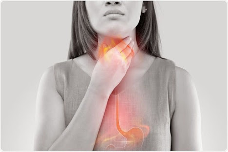 What is the difference between acidity and heartburn
