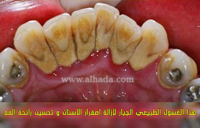 هذا الغسول الطبيعي الجبار لإزالة إصفرار الأسنان و تحسين رائحة الفم ..جربيها لن تندمي