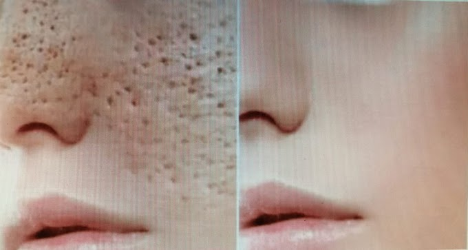 Days and All Open Pores Will Disappear from Your Skin Forever