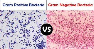 Perbedaan bakteri gram positif dan gram negatif di bawah mikroskop