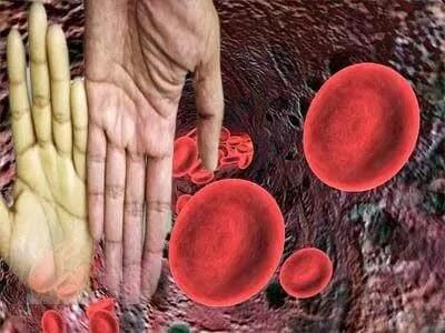 فقر الدم | اعراض فقر الدم وعلاجه