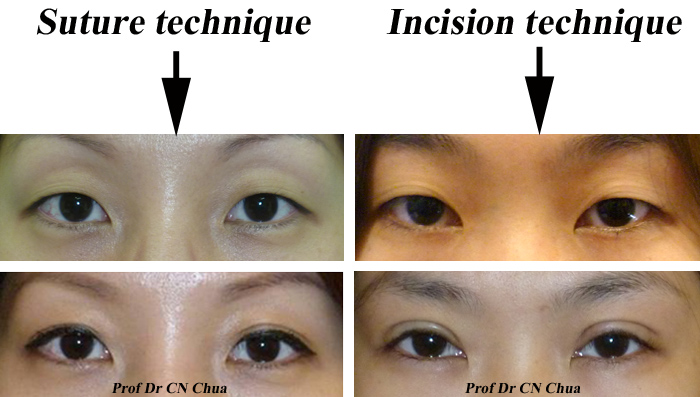 Incision Vs Suture Eyelid Surgery Asian 14