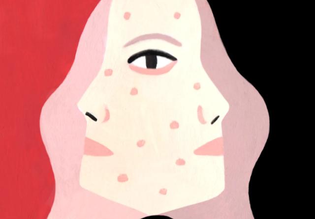 Bagaimana Menghilangkan Jerawat: 25 Tips Perawatan Kulit dari Dermatologists