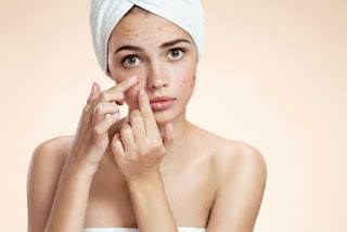 Probiotics For Acne UK