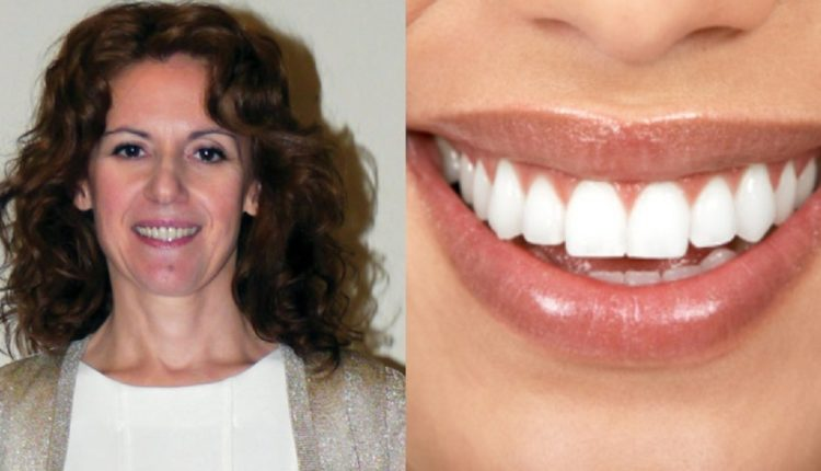 Ελληνίδα οδοντίατρος, εφηύρε ουσία που αναπλάθει τα δόντια φυσικά, χωρίς σφραγίσματα