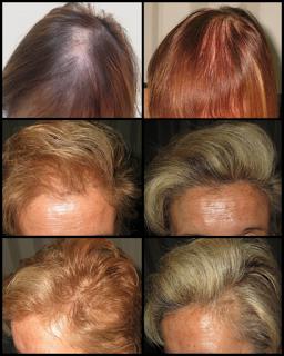alimentacion cabello sano doctor villodres
