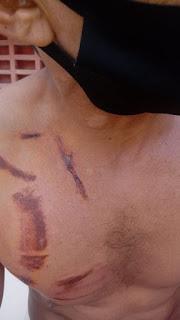 Trabalhador acidentado agoniza com fortes dores na Emergência do Hospital de Camocim aguardando atendimento