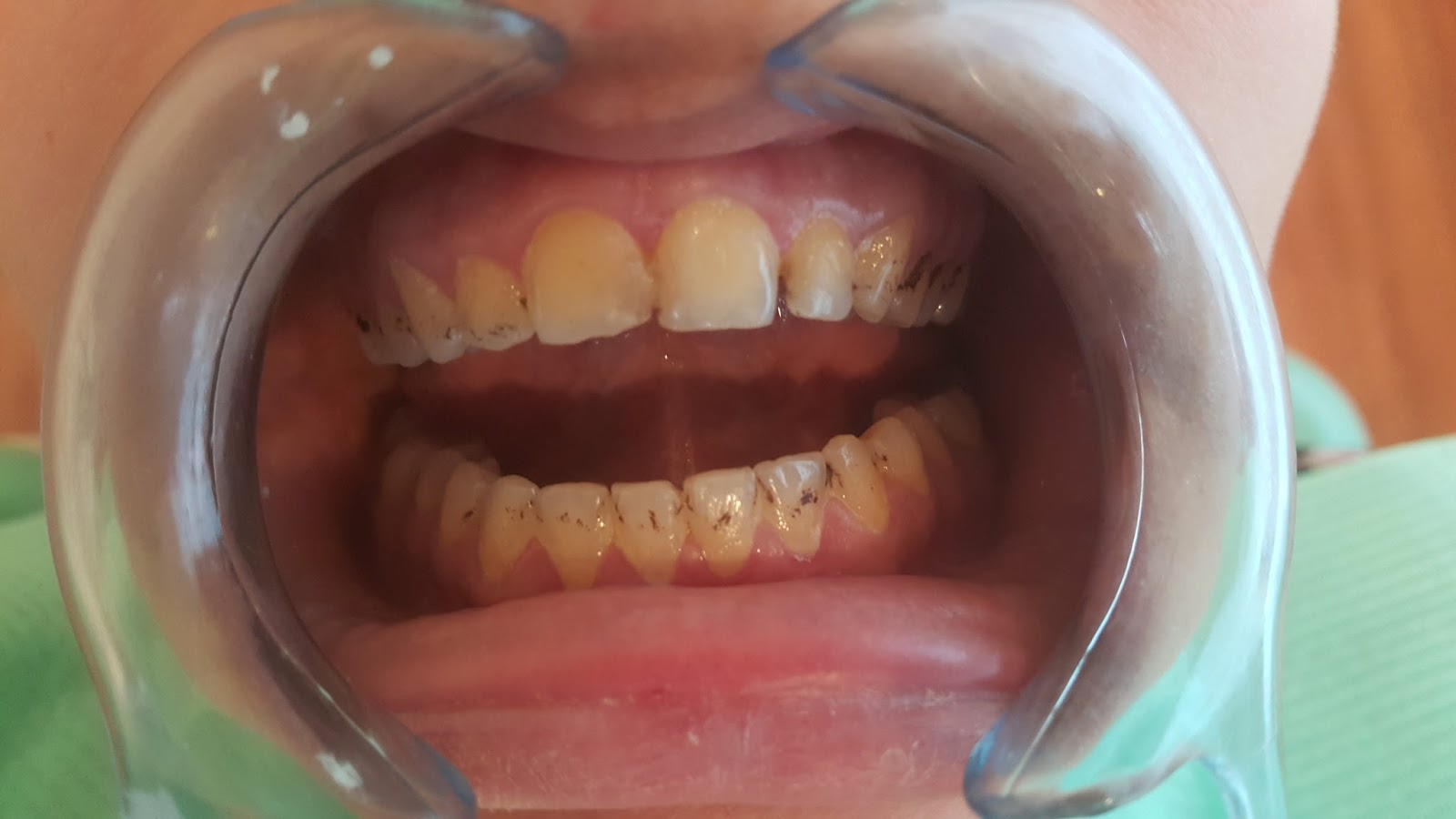 Tooth Staining and Discoloration: a review of literature ...