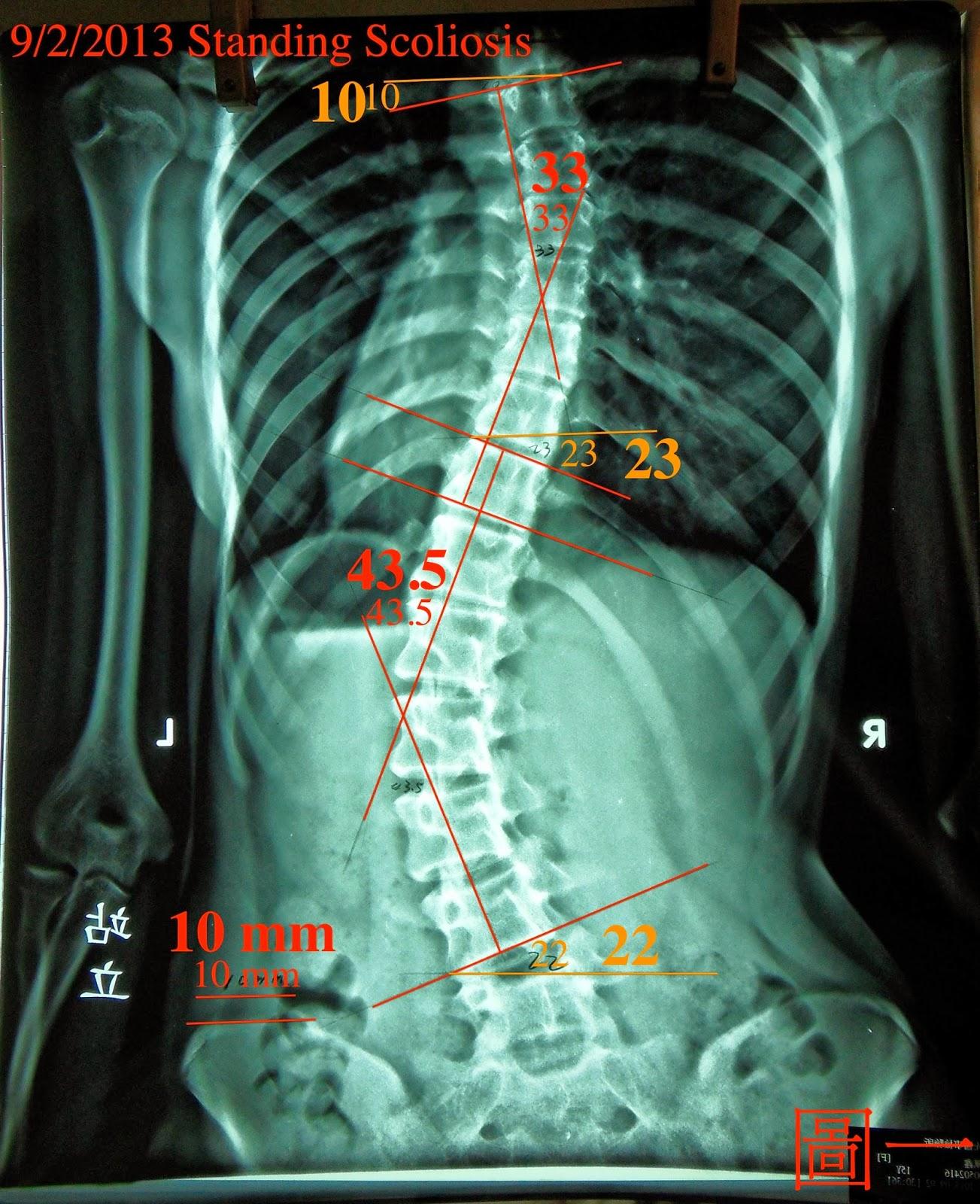 脊椎側彎矯正案例5- 治療9次成果43.5度~32度- 後續追蹤一(5個月進步19度) - 閻曉華脊骨神經醫學網