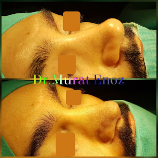 2nd Revision Rhinoplasty Operation in Men, Second Revision Nose Aesthetic Surgery For Male,Revision Rhinoplasty Istanbul,