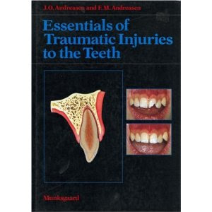 Essentials of Traumatic Injuries of the Teeth -Andreasen