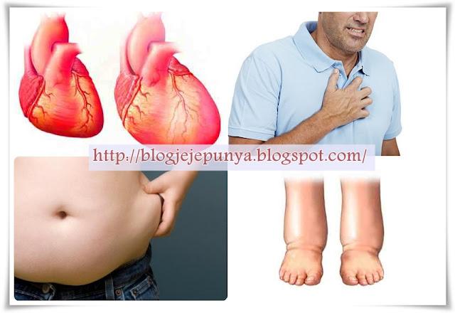 Cara Mengobati Kardiomegali