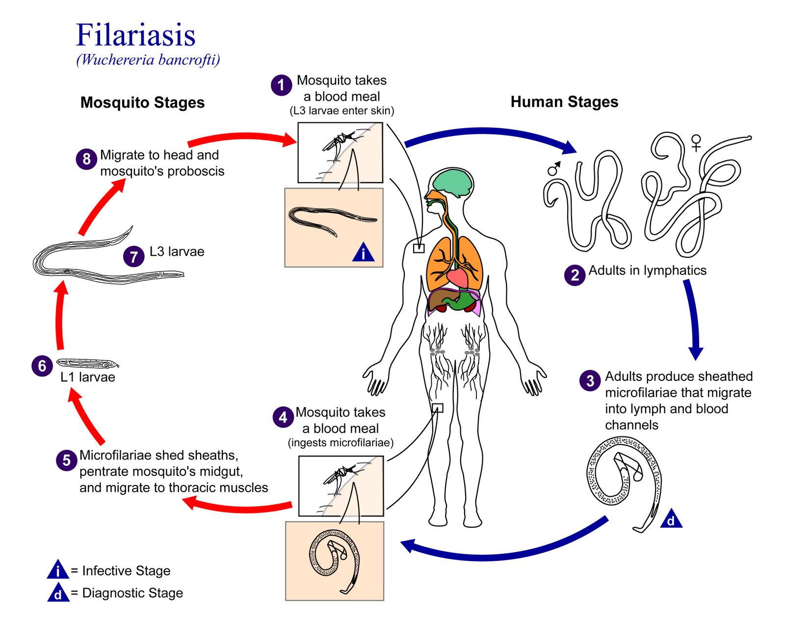 Lymphatic Filariasis Natural Treatment