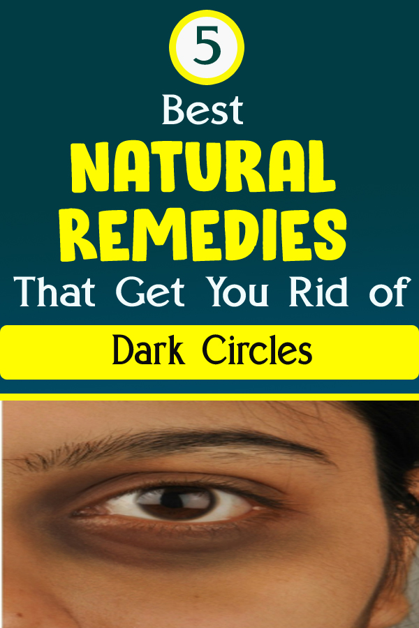 5 Best Natural Remedies That Get You Rid of Dark Circles