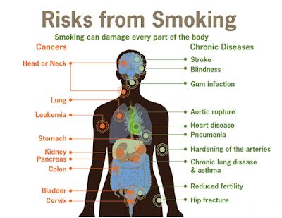 Penyakit yang diakibatkan oleh rokok
