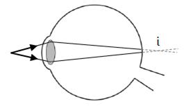 Hipermetropi (Kelainan Pada Mata )