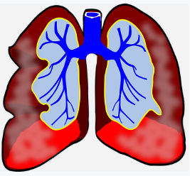 7 Strategies to Face Asthma