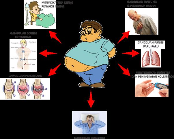 Komplikasi obesitas