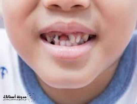 العلاجات الطبيعية للتخلص من تسوس الاسنان عند الاطغال .