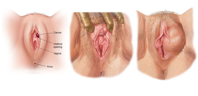 vulvar cancer pictures and remedies