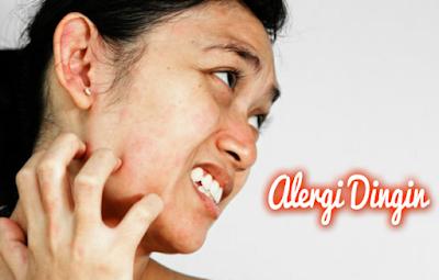 Nama Obat Gatal Alergi Bentol Kulit Alergi Udara Dingin Dan Makanan